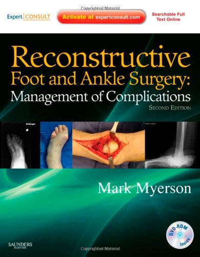 9781437709230: Reconstructive Foot and Ankle Surgery: Management of Complications: Expert Consult - Online, Print, and DVD, 2e