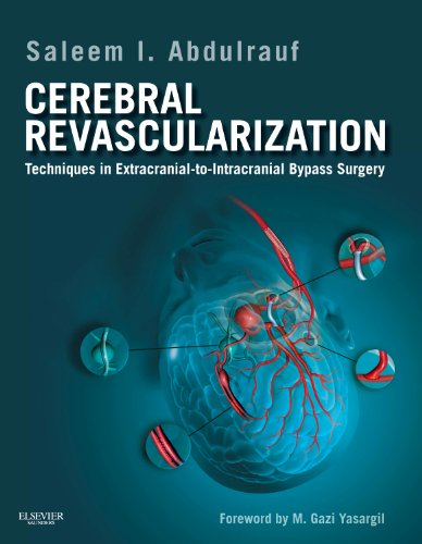 Cerebral Revascularization: Techniques in Extracranial-to-Intracranial Bypass Surgery: Saleem I. Abdulrauf