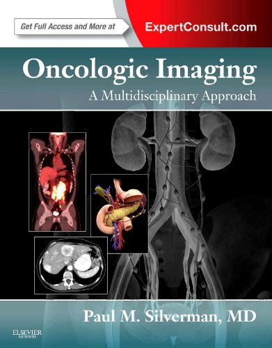 9781437722321: Oncologic Imaging: A Multidisciplinary Approach: Expert Consult - Online and Print