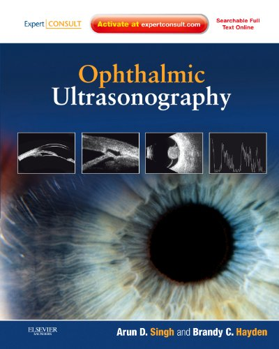 Ophthalmic Ultrasonography: Expert Consult - Online and Print, 1e: Arun D. Singh MD