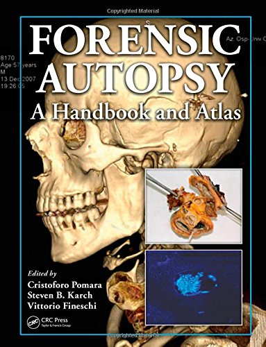 9781439800645: Forensic Autopsy: A Handbook and Atlas