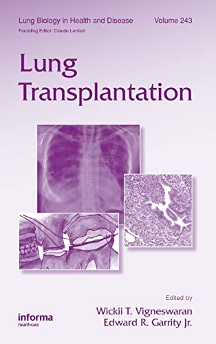9781439802557: Lung Transplantation (Lung Biology in Health and Disease, Vol. 243)