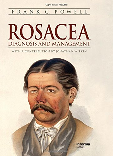 9781439804971: Rosacea: A Clinical Guide to Diagnosis and Management