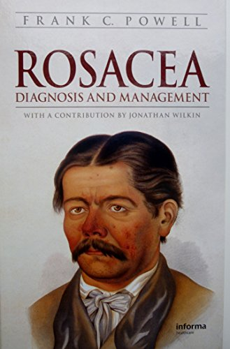 9781439809990: Rosacea: Diagnosis and Management
