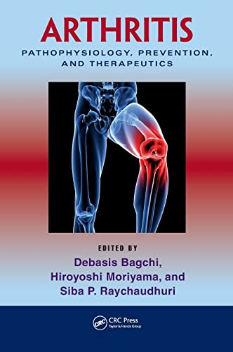 9781439816868: Arthritis: Pathophysiology, Prevention, and Therapeutics