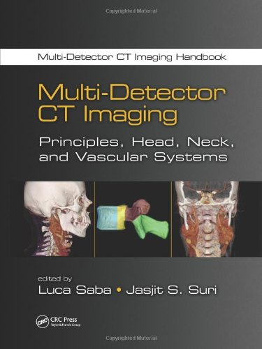 9781439893807: Multi-Detector CT Imaging: Principles, Head, Neck, and Vascular Systems (Multi-Detector CT Imaging Handbook) (Volume 2)