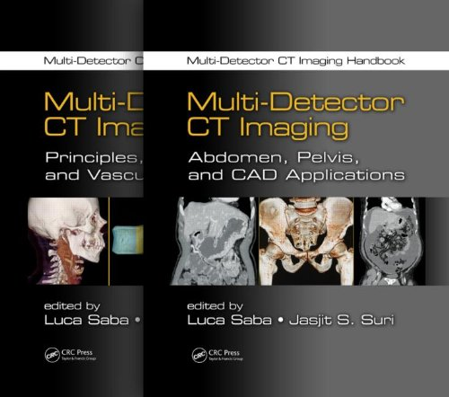 9781439893999: Multi-Detector CT Imaging Handbook, Two Volume Set