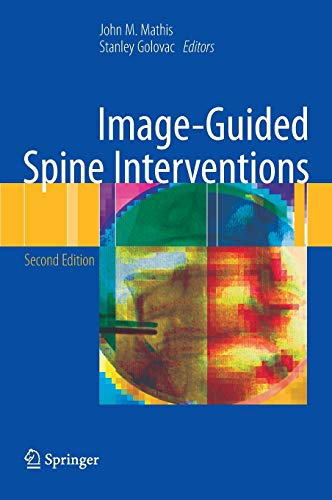 Image-Guided Spine Interventions: John M. Mathis