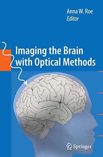 Imaging the Brain with Optical Methods: Anna W. Roe