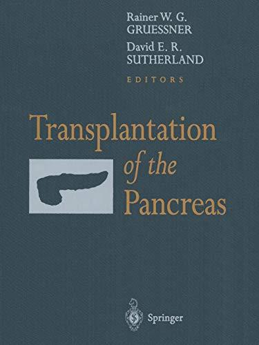 9781441918307: Transplantation of the Pancreas