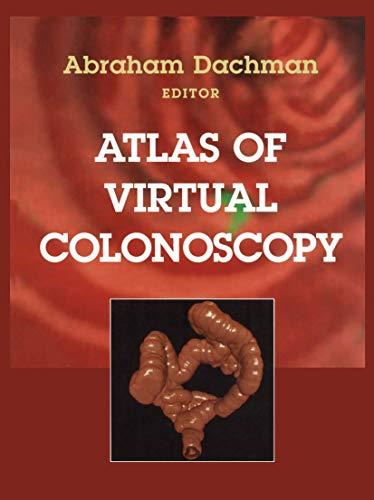 9781441930316: Atlas of Virtual Colonoscopy
