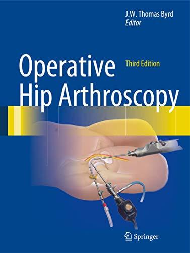 Operative Hip Arthroscopy: J. W. Thomas Byrd