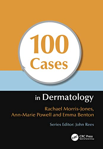 100 Cases in Dermatology: Rachael Morris-Jones, Ann-Marie Powell, Emma Benton
