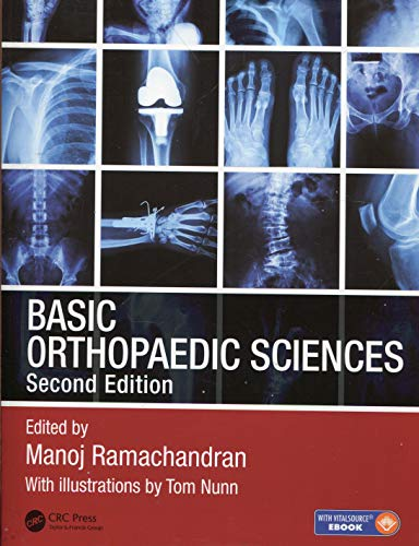 9781444120981: Basic Orthopaedic Sciences, Second Edition