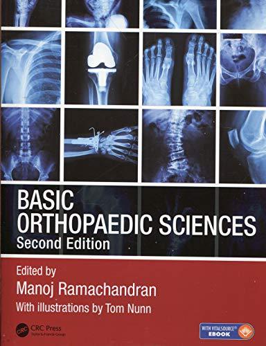 9781444120981: Basic Orthopaedic Sciences