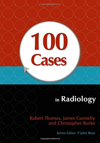 9781444123319: 100 Cases in Radiology