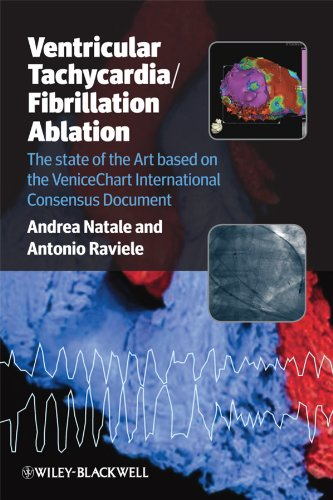 9781444330731: Ventricular Tachycardia / Fibrillation Ablation: The state of the Art based on the VeniceChart International Consensus Document