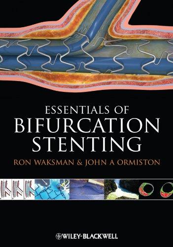 9781444334623: Bifurcation Stenting
