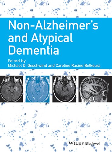 9781444336245: Non-Alzheimer's and Atypical Dementia