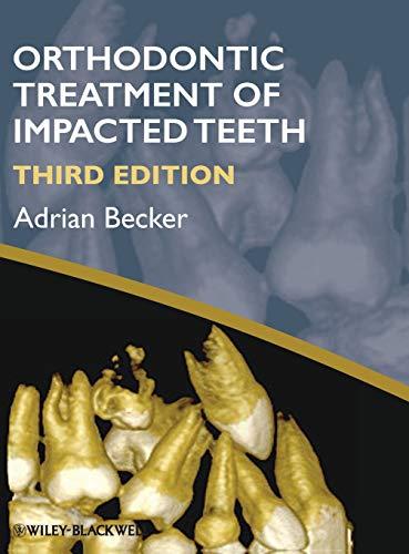 9781444336757: The Orthodontic Treatment of Impacted Teeth