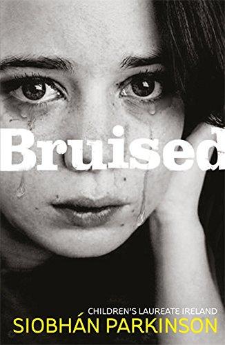 9781444903591: Bruised