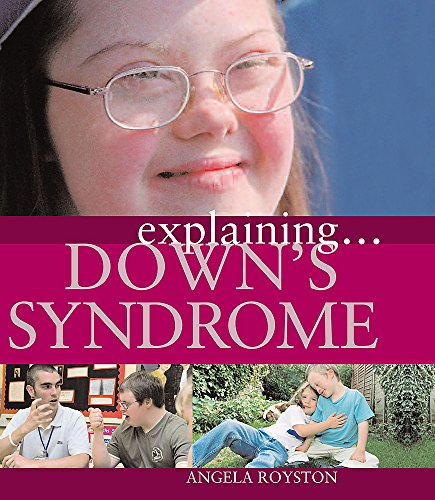 9781445117690: Down's Syndrome (Explaining)