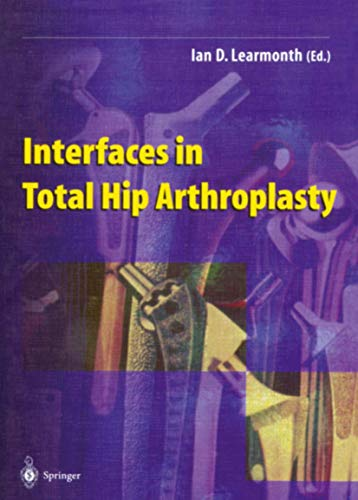 9781447111504: Interfaces in Total Hip Arthroplasty