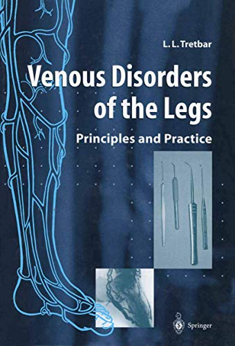 9781447112037: Venous Disorders of the Legs: Principles and Practice