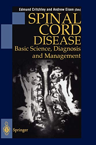 9781447112334: Spinal Cord Disease: Basic Science, Diagnosis and Management