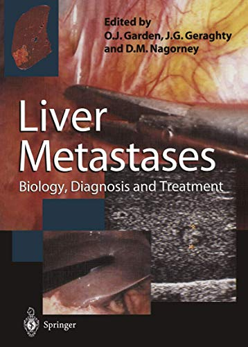 9781447115083: Liver Metastases: Biology, Diagnosis and Treatment