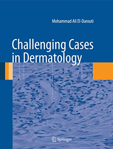 Challenging Cases in Dermatology (Hardcover): Mohammad Ali El-Darouti