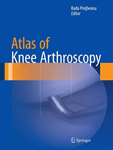 Atlas of Knee Arthroscopy: Radu Prejbeanu