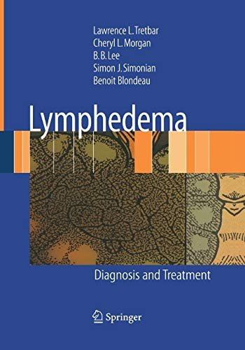 9781447168171: Lymphedema: Diagnosis and Treatment