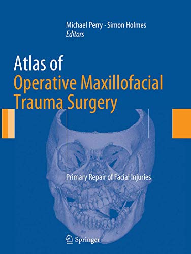9781447169727: Atlas of Operative Maxillofacial Trauma Surgery: Primary Repair of Facial Injuries