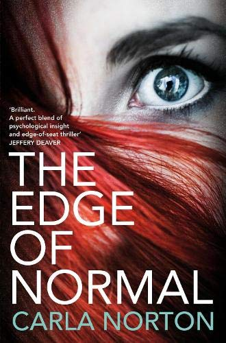 9781447230694: The Edge of Normal