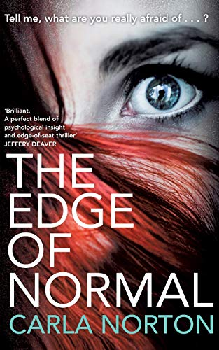9781447230786: The Edge of Normal