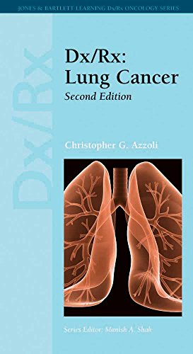 9781449600396: Dx/Rx: Lung Cancer (Dx/Rx Oncology)