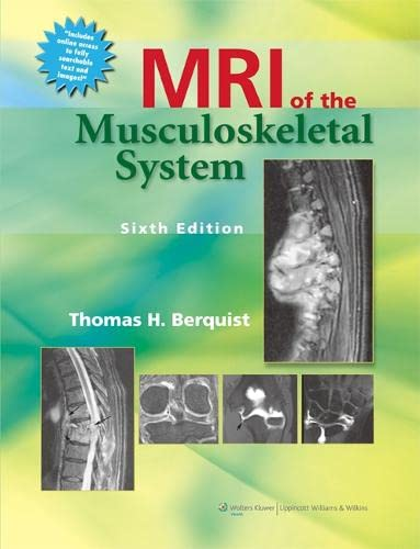MRI of the Musculoskeletal System: Thomas H. Berquist