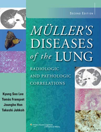 Muller's Diseases of the Lung: Radiologic and: Kyung Soo Lee,