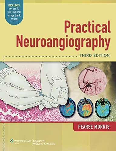 Practical Neuroangiography: P. Pearse Morris