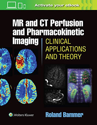 9781451147155: MR & CT Perfusion Imaging: Clinical Applications and Theory