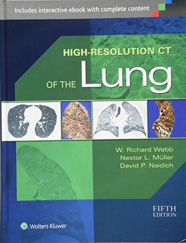 9781451176018: High-Resolution CT of the Lung