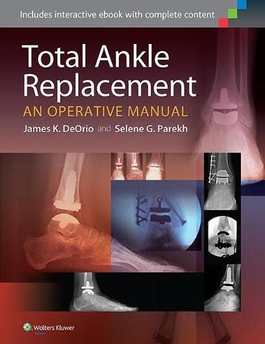 9781451185225: Total Ankle Replacement: An Operative Manual