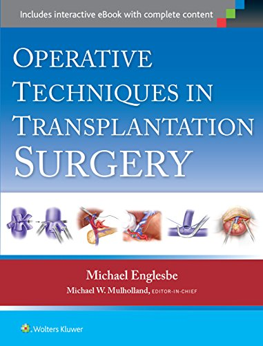 Operative Techniques in Transplantation Surgery: Michael J. Englesbe