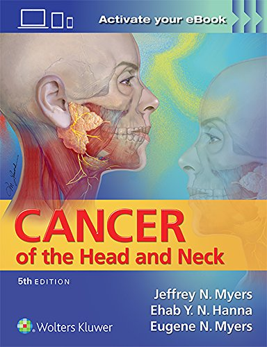 9781451191134: Cancer of the Head and Neck