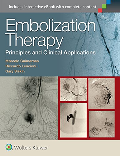 Embolization Therapy: Principles and Clinical Applications: Marcelo Guimaraes