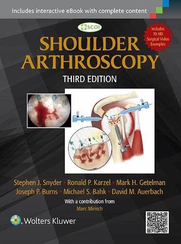 9781451191707: Shoulder Arthroscopy