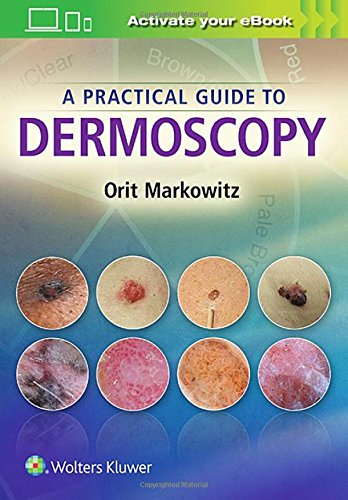 9781451192636: A Practical Guide to Dermoscopy