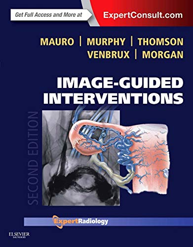 9781455705962: Image-Guided Interventions: Expert Radiology Series (Expert Consult - Online and Print), 2e