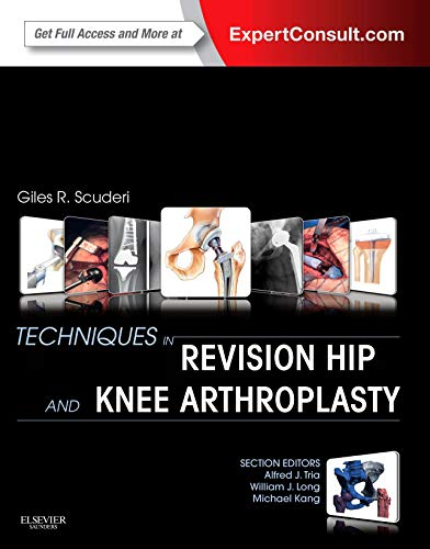9781455723683: Techniques in Revision Hip and Knee Arthroplasty, 1e